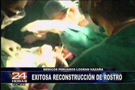 Mujer operada de tumor en el rostro se recupera satisfactoriamente