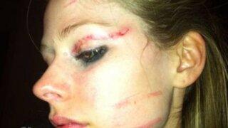 Avril Lavigne quedó con el ojo morado tras protagonizar una pelea callejera