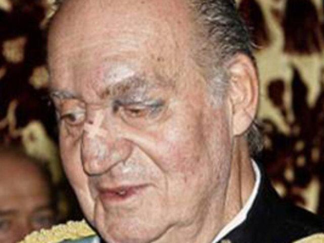 Rey Juan Carlos de España apareció con moretones en el rostro ante la prensa