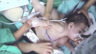 Chile: Médicos logran separar a siamesas tras operación de 20 horas