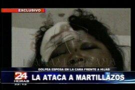 Mujer quedó desfigurada tras ser golpeada por su esposo