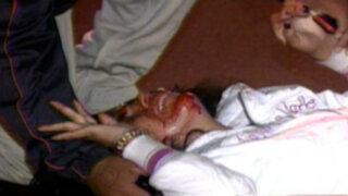 Mujer salva de morir tras ser arrollada por funcionario municipal de San Miguel