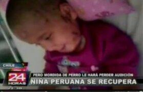 Chile: niña peruana atacada por rottweiler perdió la audición en una oreja