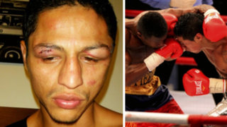 Con graves lesiones queda Jonathan Maicelo tras pelea con ecuatoriano
