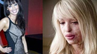 Modelo desfigurada por exnovio recupera belleza tras varias cirugías