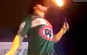 Ex integrante de Exporto Brasil se quemó el rostro durante show