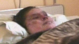 Cajamarca: mujer queda grave luego de ser quemada por su pareja