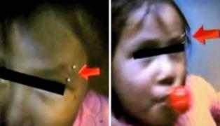 Policías está tras los pasos de la mujer que puso piercing a niña de 3 años
