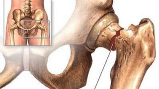 Científicos desarrollan una prótesis de cadera que podría durar toda la vida