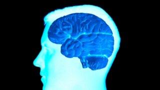 Científicos descubrieron origen inesperado de los tumores cerebrales