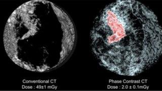 Cáncer de mama podrá ser detectado en escáner de tres dimensiones