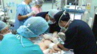 Sobrevivió una de las siamesas unidas por el hígado en Hospital San Bartolomé
