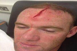 Wayne Rooney sufrió un terrible corte en la cabeza tras chocar con su compañero