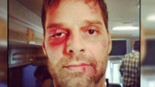 EEUU: Ricky Martin sorprende a fanáticos con foto de su rostro golpeado