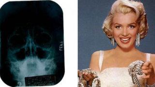 Marilyn Monroe se sometió a una cirugía plástica de nariz y barbilla