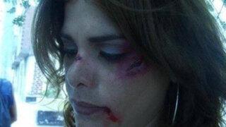 Giovanna Valcárcel publicó impactante fotografía con su rostro golpeado
