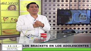 Salud Dental: ¿cuál es la edad ideal para iniciar un tratamiento con brackets?