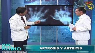Soluciones Médicas: Conozca las diferencias entre la artrosis y artritis