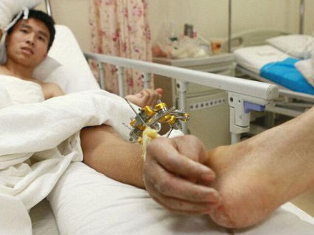 Proeza médica en China: le implantan su mano en el tobillo para salvarle la vida