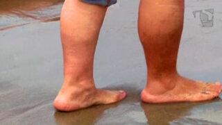 La moda del calzado playero: cuide sus pies en este verano