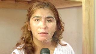 Mujer que fue desfigurada con agua hirviendo recibió alta médica