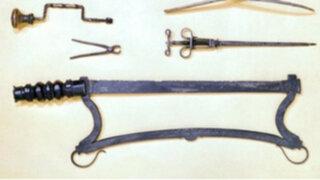 FOTOS: sorprendentes herramientas médicas que hoy aterrorizarían a pacientes