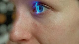 Glaucoma: sepa todo sobre esta silenciosa enfermedad que puede provocar ceguera