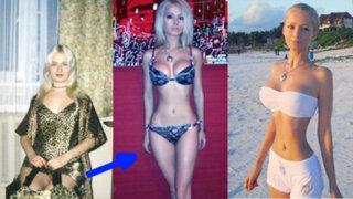 FOTOS: inquietantes cambios tras cirugías estéticas que parecen imposibles
