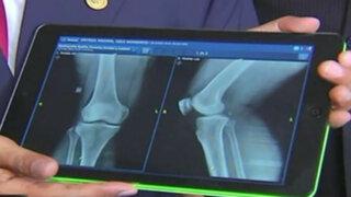 Sistema de radiografías digitalizadas ya opera en hospital Cayetano Heredia