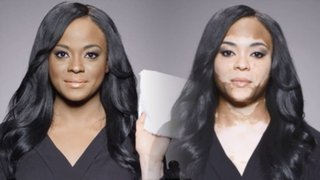 VIDEO: cuando maquillaje es el único remedio para camuflar la enfermedad