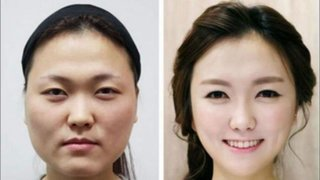 FOTOS: Corea del Sur es el país con la mayor tasa de cirugías estéticas del mundo
