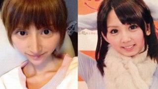 Japón: exceso de cirugías deja con el rostro deforme a actriz porno