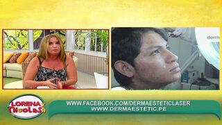 Conozca los últimos tratamientos para eliminar las secuelas de acné