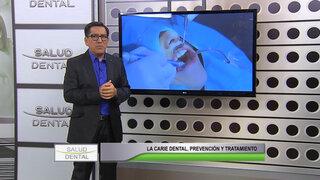Salud Dental: conozca los síntomas y tratamientos para curar las caries