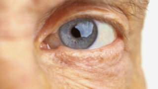 Lorena y Nicolasa: Diferencias entre una catarata y una carnosidad ocular