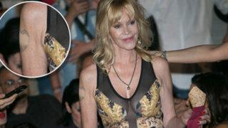 """Melanie Griffith se borró el tatuaje de """"Antonio Banderas"""" de su brazo derecho"""