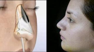 Lorena y Nicolasa: entérese sobre el novedoso método para cirugías a la nariz
