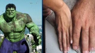 El increíble Hulk existe en la vida real y tiene las manos más grandes del mundo