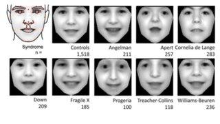 Crean programa capaz de diagnosticar transtornos genéticos mediante fotos