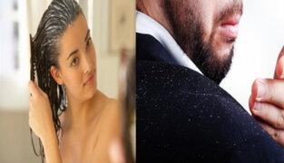 Lorena y Nicolasa: conozca todos los tips para cuidar tu cabello de la caspa