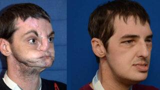 FOTOS: le trasplantaron la cara y ahora es portada de una revista de moda