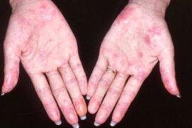 Australia: científicos identifican por primera vez la causa genética del lupus