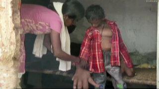 Niño sufre inexplicable deformidad que aumenta el tamaño de sus manos