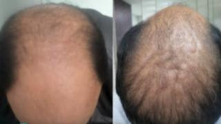 Recupere su cabello con novedosa técnica de estimulación por plasma