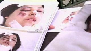 Joven quedó gravemente herida tras ser atropellada por furgoneta
