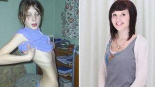 FOTOS: 15 impactantes transformaciones de personas que vencieron a la anorexia
