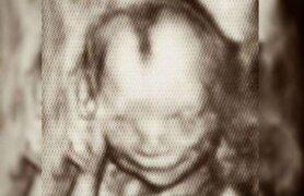 Ecografía inmortaliza a un feto sonriendo dentro del vientre materno