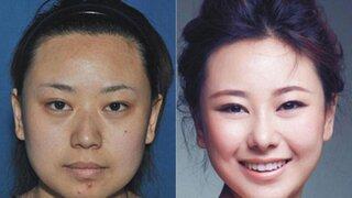 FOTOS: las mujeres chinas y su adicción por las cirugías estéticas extremas