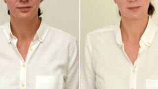FOTOS: bebió 3 litros de agua cada día durante un mes y así cambió su rostro