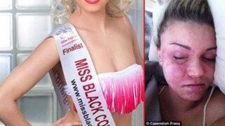 FOTOS: nació con una terrible enfermad a la piel, pero hoy es reina de belleza